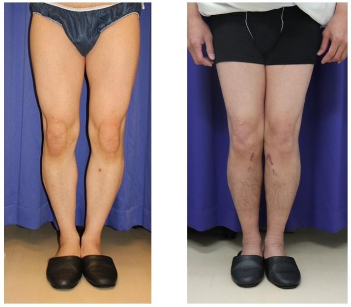 O脚修正術(がに股修正術) 術後約半年再診時_d0092965_00340782.jpg
