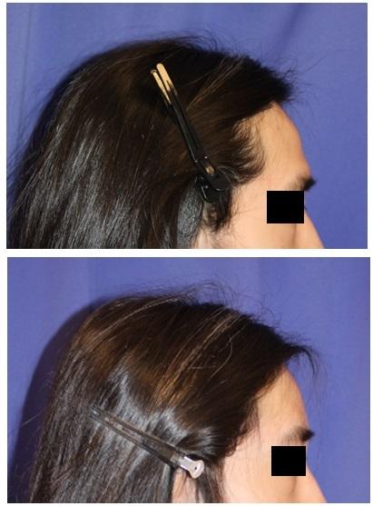 前頭洞セットバック, 眉骨削り 術後約半年_d0092965_01213368.jpg