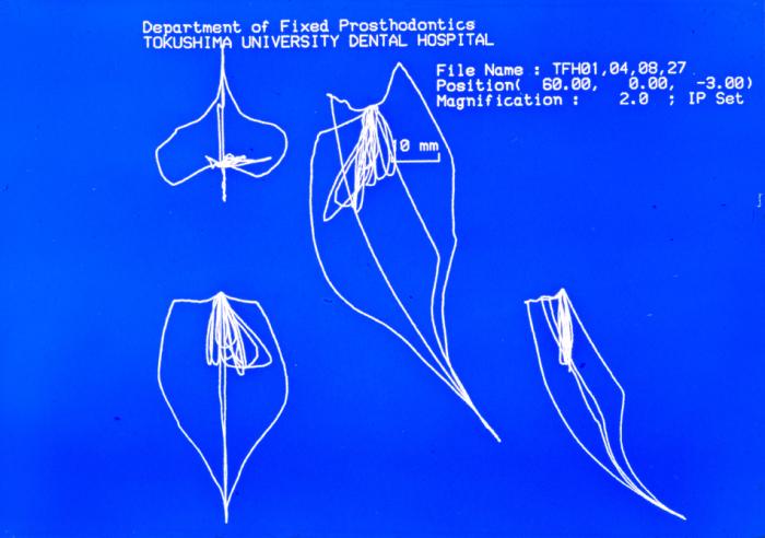 徳島大・坂東教室/1987.8.1_f0103459_13021236.jpg