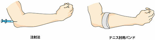 テニス肘 治療_a0296269_14044316.jpg