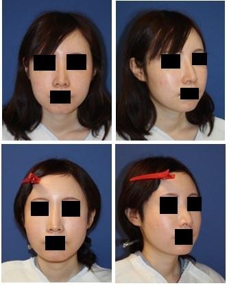 頬骨弓骨切り術・バッカルファット摘出・鼻プロテーゼ抜去_c0193771_04323782.jpg