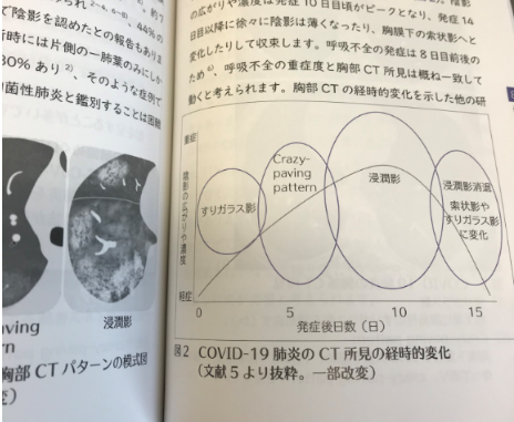 コロナ 気管支 喘息