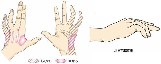 肘部管症候群 症状_a0296269_09031693.jpg
