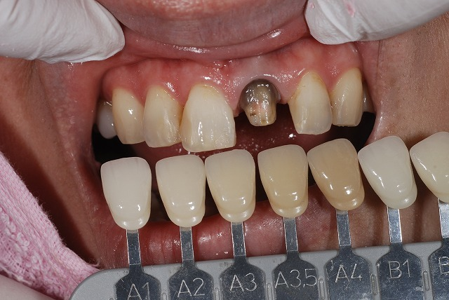 歯科技工 一般の方にはわかりずらいとは思いますが_a0071724_13284379.jpg