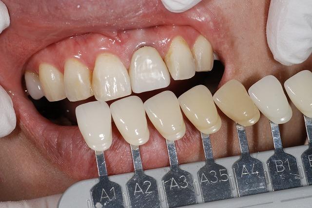 歯科技工 一般の方にはわかりずらいとは思いますが_a0071724_13285224.jpg