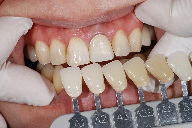 歯科技工 一般の方にはわかりずらいとは思いますが_a0071724_13285770.jpg