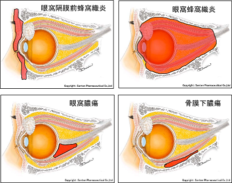 眼瞼腫脹:眼科医が見ているものシリーズ その9 (1198)_f0088231_22095803.png