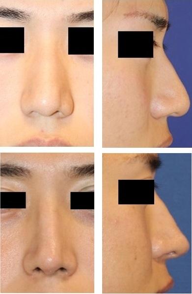 鼻根縮小術(鼻骨骨切り幅寄せ術)、わし鼻修正術 術後約半年_d0092965_03465216.jpg