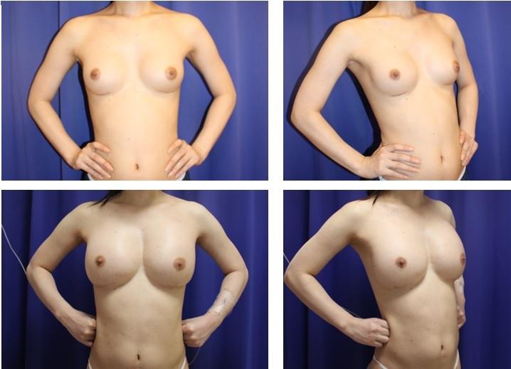 他院豊胸バッグ摘出術+新豊胸バッグ留置+脂肪移植豊胸術_d0092965_04551971.jpg