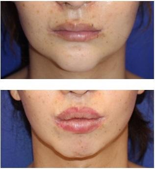 上口唇上切開による口唇増大術 ならびに 下口唇 プロテーゼ留置術による口唇増大術_d0092965_05035757.jpg