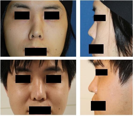 鼻尖部軟骨移植、 鼻孔縁延長術(鼻孔縁下降術) 術後約7年再診_d0092965_01404821.jpg