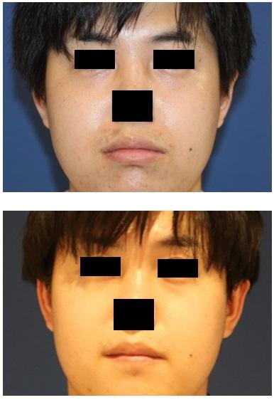 下口唇縮小形成術 術後約半年再診時_d0092965_01444833.jpg