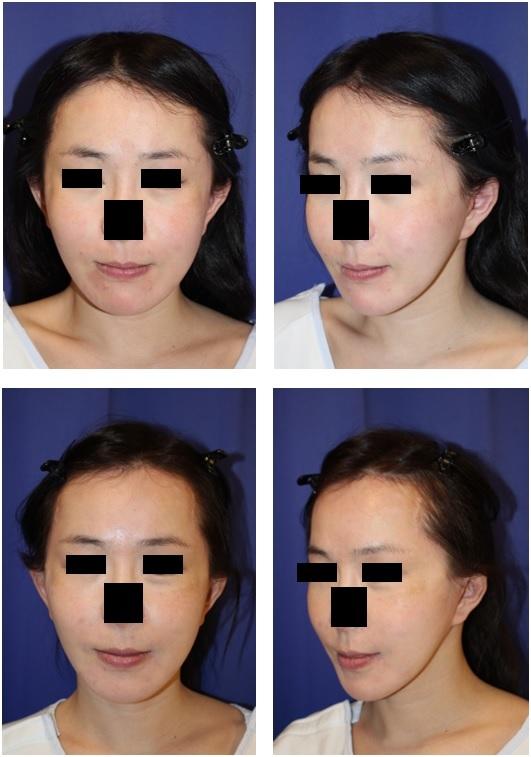 ミニリフト、頬ベイザー脂肪吸引、頬骨削り(口内法)、エンドタインミッドフェイスリフト 術後約半年再診時_d0092965_04400276.jpg