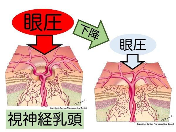 第5章 実践その2 緑内障の治療_a0257968_15500311.jpeg