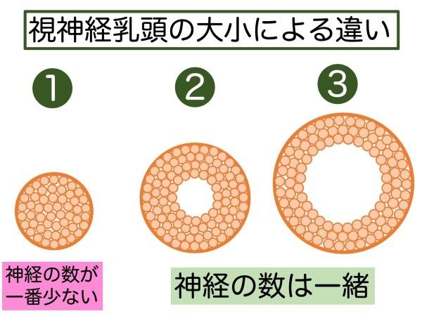 第4章 実践その1 緑内障の見つけ方_a0257968_15590933.jpeg