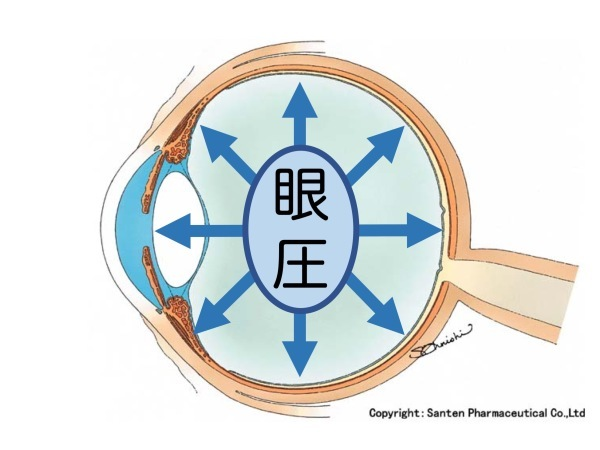 第3章 誤解その3「眼圧が高いと緑内障」_a0257968_16055567.jpeg