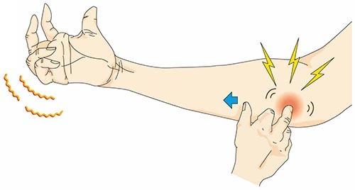 肘部管症候群 診断_a0296269_08421551.jpg