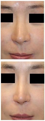 レーザー鼻尖縮小、レーザー小鼻縮小 術後約1年 : 麻酔科専門医としての抱負_d0092965_04052337.jpg