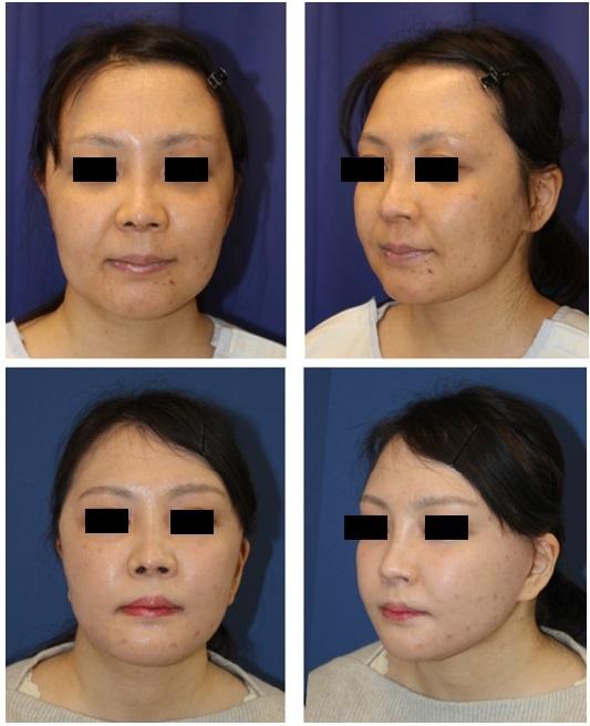 人中短縮術、 フェイスリフト(SMASリフト) 、ベイザー頬脂肪吸引  術後約半年再診時_d0092965_04501491.jpg