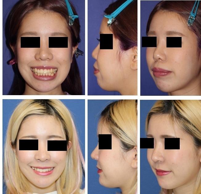 上下顎セットバック術後約9月, 鼻中隔延長術、鼻孔縁挙上術、小鼻肉厚減幅術、鼻尖縮小術、小鼻縮小術 術後約半年_d0092965_04560372.jpg