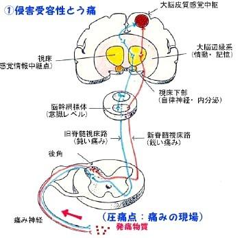 「痛み」の勉強、お医者さん任せにはできない_b0052170_14060005.jpg