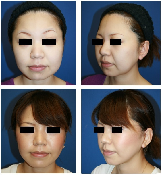 頬脂肪吸引、バッカルファット摘出術、ミニリフト 約半年後_d0092965_04570979.jpg