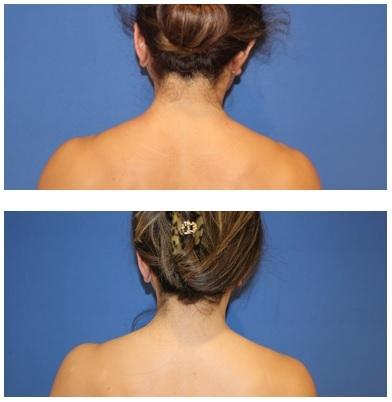 肩こりに対する ボツリヌス毒素注射 治療 (肩こりボトックス)_d0092965_05520945.jpg