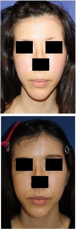 こめかみ、頬脂肪移植 術後約半年再診時_d0092965_07552304.jpg