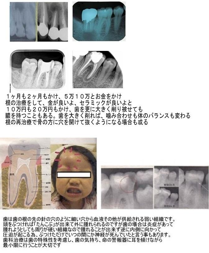 歯は抜かない、神経も取らない、被せない_d0338857_05285152.jpg