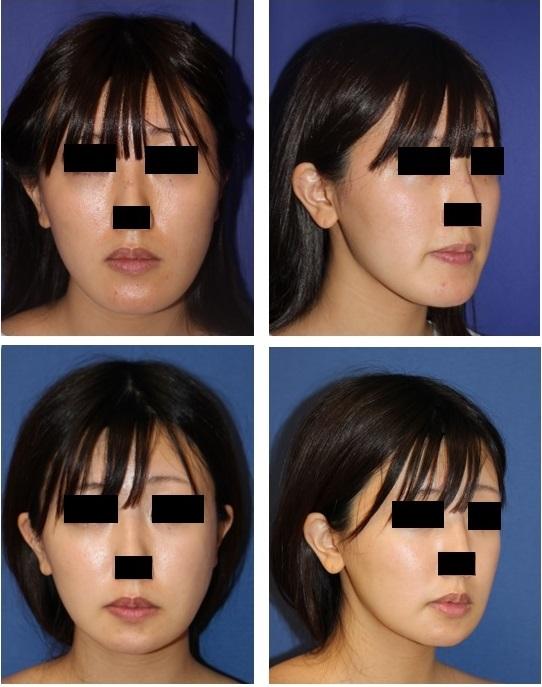頬骨V字骨切術 + 下顎縁下縁骨切術(スティック骨切術) 術後約半年再診時_d0092965_22305401.jpg
