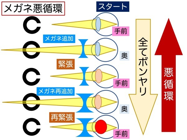 第4章 その3 ココロの問題で視力低下?_a0257968_13144753.jpeg