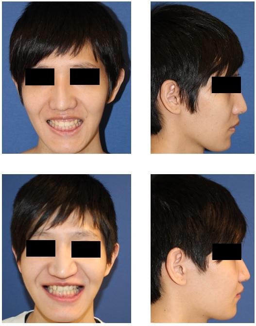 LeFortⅠ型骨切術によるガミースマイル修正術  術後約半年再診時_d0092965_06560462.jpg
