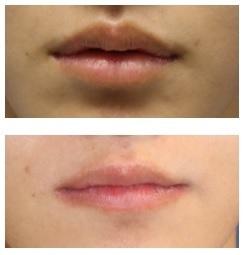 上口唇縮小形成術 術後約一年半再診時_d0092965_07190039.jpg