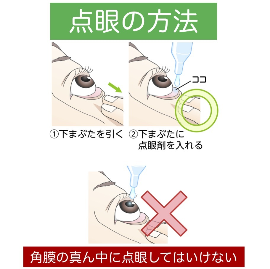 点眼の方法_a0257968_16232085.jpg