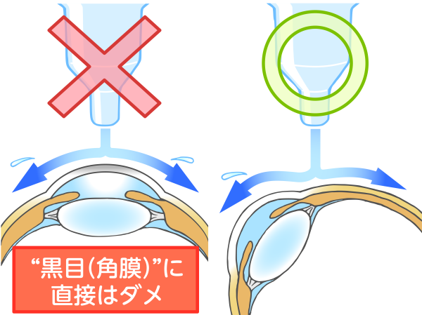 点眼の方法_a0257968_16235773.png