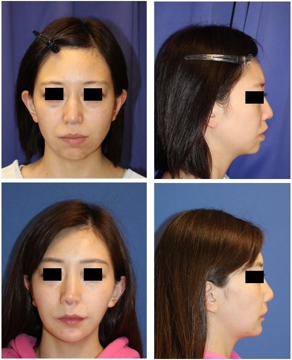 口元をひっこめる:上下顎セットバック(歯槽骨骨切術)術後約半年再診時_d0092965_04324151.jpg