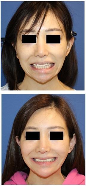 口元をひっこめる:上下顎セットバック(歯槽骨骨切術)術後約半年再診時_d0092965_04383965.jpg