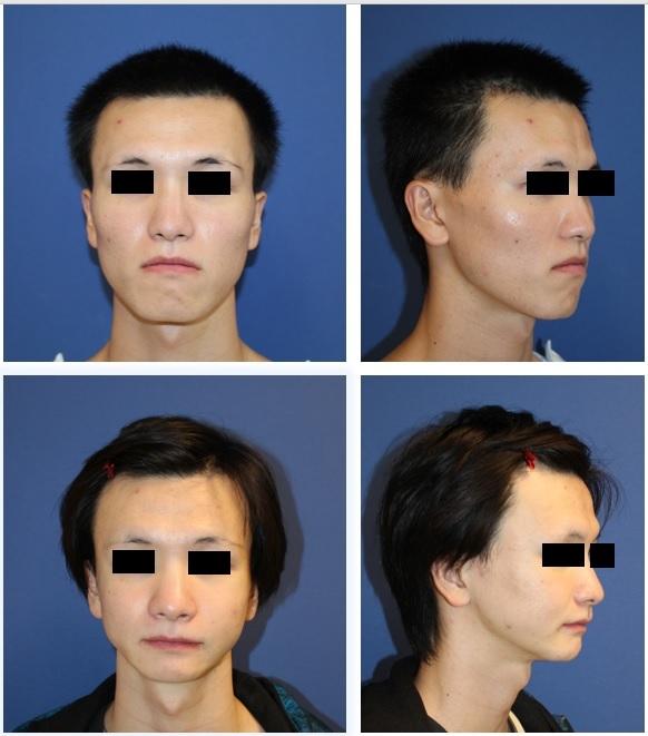 中顔面短縮術(LeFort一型骨切術+下顎矢状分割術:SSRO)、顎先T字骨切術、下顎縁下縁骨切術(スティック骨切術)、頬骨V字骨切術、頬骨基部削り 術後約半年再診時_d0092965_07072621.jpg