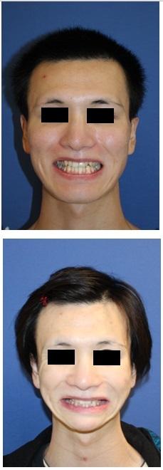 中顔面短縮術(LeFort一型骨切術+下顎矢状分割術:SSRO)、顎先T字骨切術、下顎縁下縁骨切術(スティック骨切術)、頬骨V字骨切術、頬骨基部削り 術後約半年再診時_d0092965_07163801.jpg