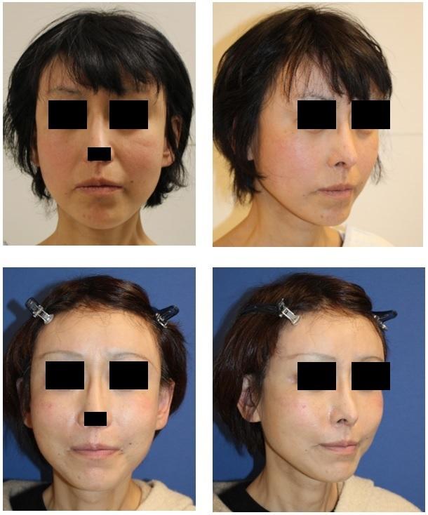 こめかみリフト、ほうれい線剥離術、ほうれい線脂肪移植、ミネルバリフト 術後約3か月_d0092965_13223240.jpg