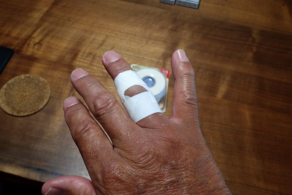 右手薬指第二関節の脱臼_e0220163_13540020.jpg