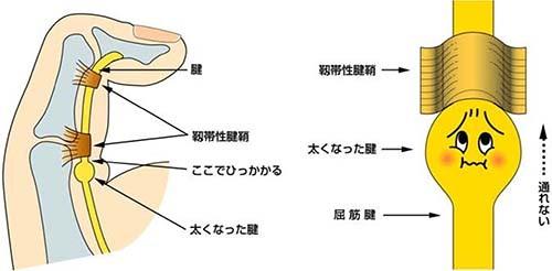強剛拇指 原因・病態_a0296269_08543743.jpg