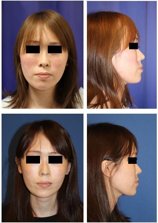 鼻翼基部プロテーゼ 術後約半年再診時_d0092965_00104719.jpg