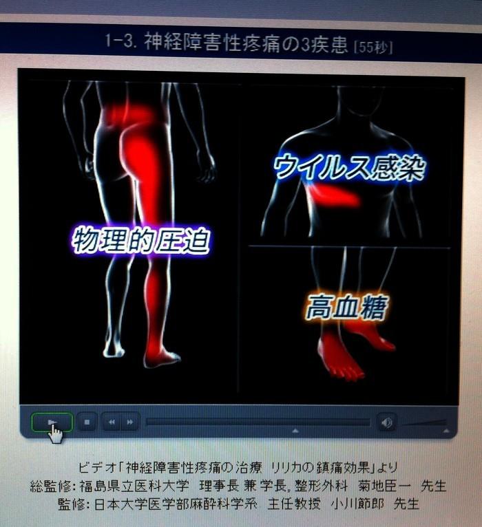 神経障害性疼痛に適応「リリカ」_b0052170_02123760.jpg