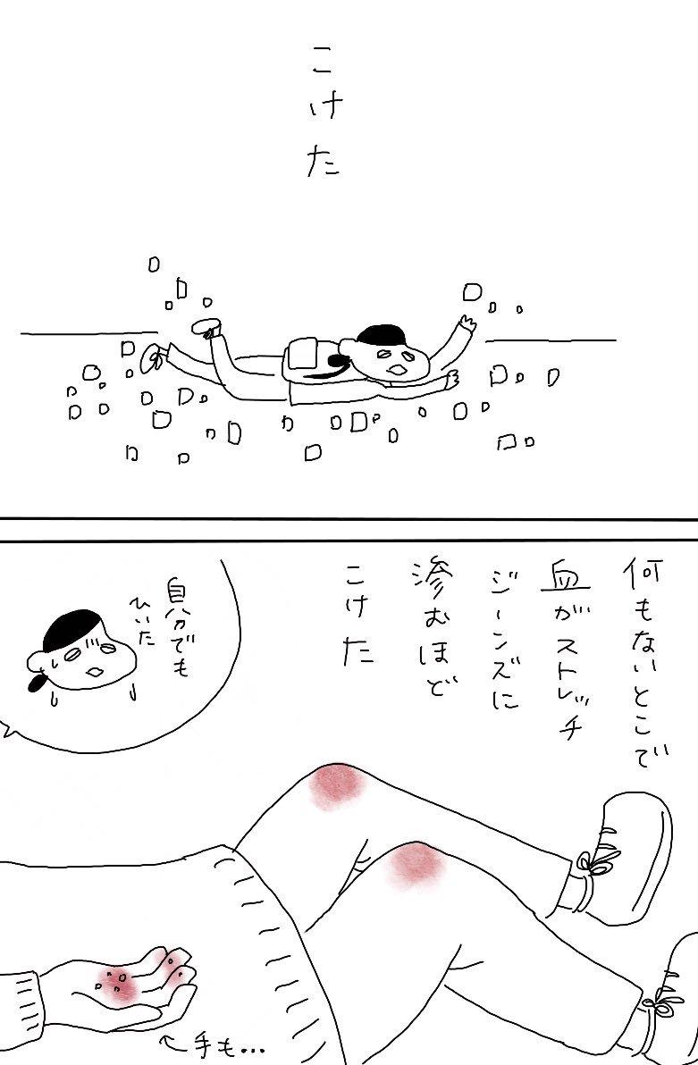 よく転ぶ話_e0413199_22032327.jpg