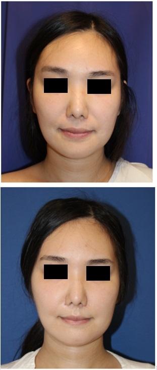 下顎骨外板切除、鼻翼基部骨移植術 術後約3か月_d0092965_01152447.jpg