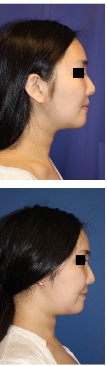 下顎骨外板切除、鼻翼基部骨移植術 術後約3か月_d0092965_01272357.jpg