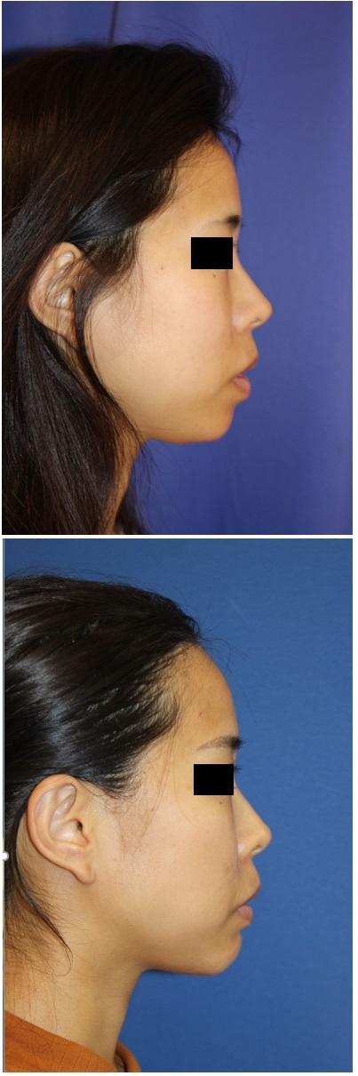他院顎先プロテーゼ抜去 + 顎先骨切前方移動術_d0092965_02545115.jpg