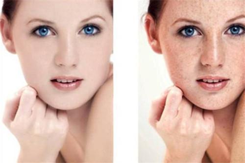 有雀斑怎麼可以去除 五個小妙招讓你皮膚變光滑_a0380589_17101998.jpg