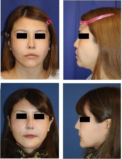 口元をひっこめる手術 上下歯槽骨骨切移動術(上下顎セットバック手術)_d0092965_00581853.jpg